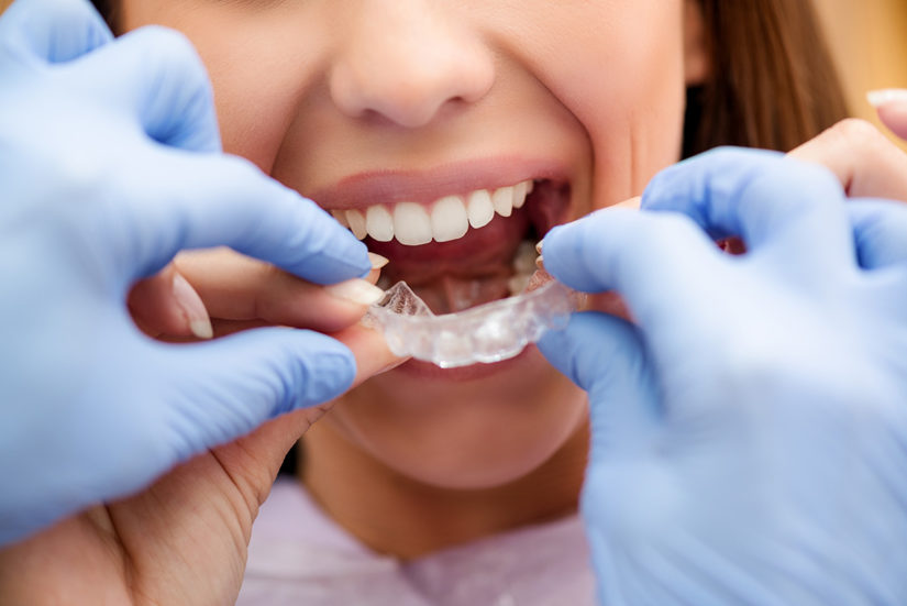 ortodoncia invisible invisaling clinica dental en valencia