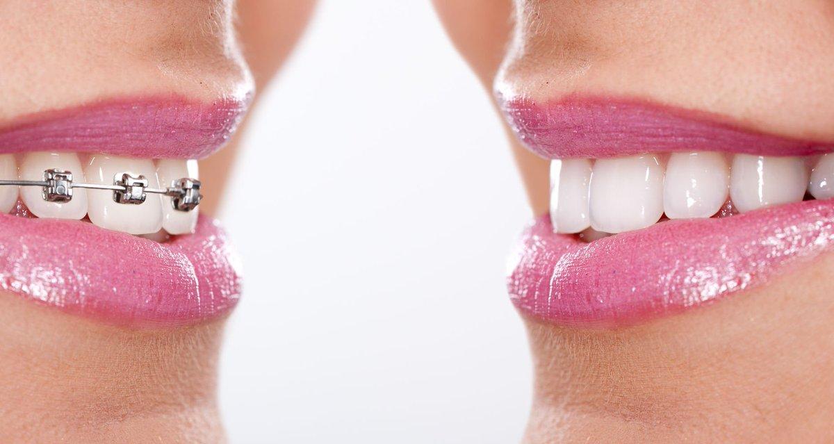 ortodoncia valencia
